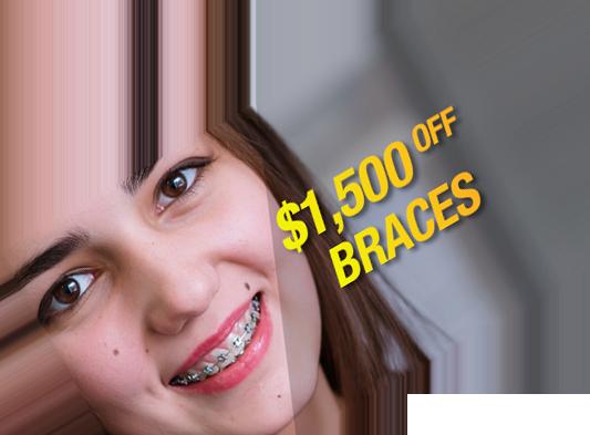 $1500 off braces